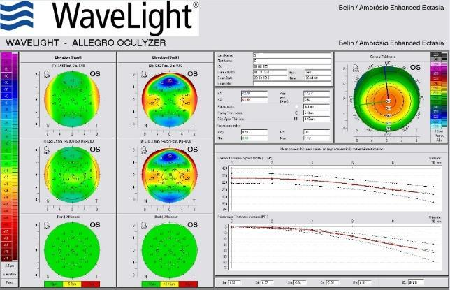 July 2015 The much larger value of the refractive error of the left eye (-11 Dsf x - 3,5 cyl ^170 ) made the therapeutic solution adopted in this eye to be an implantation of a phakic IOL- Visian ICL